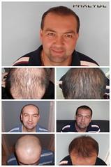 Vous dérange le manque de cheveux? La restauration de cheveux peut résoudre votre problème  http://fr.phaeyde.com/greffe-de-cheveux (phaeydeclinicfrance) Tags: hungary budapest clinic cheveux greffe phaeyde