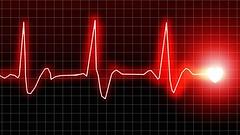 zu-den-haeufigsten-todesursachen-in-deutschland-zaehlen-herz-kreislauferkrankungen- (Christine Mller) Tags: rot ekg herz medizin ecg kurve