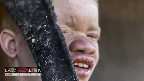 "Persons with Albinism • <a style=""font-size:0.8em;"" href=""http://www.flickr.com/photos/132148455@N06/26638691463/"" target=""_blank"">View on Flickr</a>"