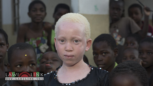 "Persons with Albinism • <a style=""font-size:0.8em;"" href=""http://www.flickr.com/photos/132148455@N06/27146839472/"" target=""_blank"">View on Flickr</a>"