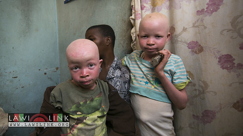 "Persons with Albinism • <a style=""font-size:0.8em;"" href=""http://www.flickr.com/photos/132148455@N06/27208655026/"" target=""_blank"">View on Flickr</a>"