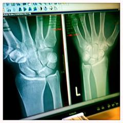 Wrist X-Ray pre-op (billyrosendale) Tags: xray wrist preop