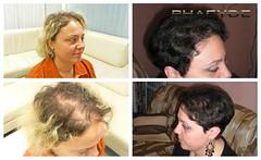 La greffe de cheveux est nowdays disponibles pour tous les types d'hommes et de femmes  http://fr.phaeyde.com/greffe-de-cheveux (phaeydeclinicfrance) Tags: hungary budapest clinic cheveux greffe phaeyde