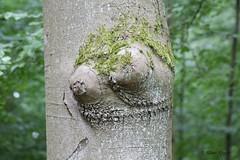 Ein Schelm, wer Bses dabei denkt. (Klaus R. aus O.) Tags: tree forest moss bosom chest cancer wald baum beech moos krebs buche busen deciduousforest laubwald brust wildwuchs geschwr