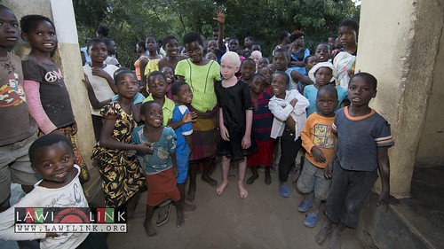 "Persons with Albinism • <a style=""font-size:0.8em;"" href=""http://www.flickr.com/photos/132148455@N06/27146880302/"" target=""_blank"">View on Flickr</a>"