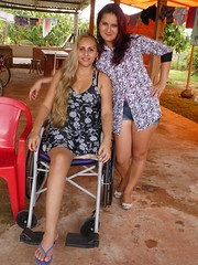PCR_23850546463947_1656727 (cb_777a) Tags: brazil accident wheelchair disabled handicapped amputee onelegged