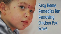 Overview for Chickenpox (manddo_care) Tags: pregnancy lifestyle health fitness chickenpox healthcare parenting healthyfood wellness followme homeremedies beautytips naturalremedies naturalcure naturalcures yogaexercises naturalpainrelief herbaltreatments readarticle manddoveda preventchickenpox