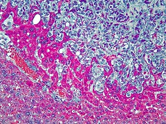 Liver Metastasis in Kaposi Sarcoma Mouse Model (National Institutes of Health (NIH)) Tags: cancer cells liver nih cancerresearch nci hepatocytes mousemodel hematoxylin endothelialcells kaposisarcoma livertissue nihimagegallery livermetastasis