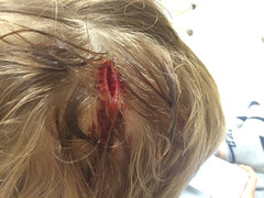 Viggo's Head-wound (juhansonin) Tags: cambridge hospital kid blood er child stitch accident head room health doctor stitches service nurse emergency wound healthcare staple mountauburn juhansonin clinician viggosonin