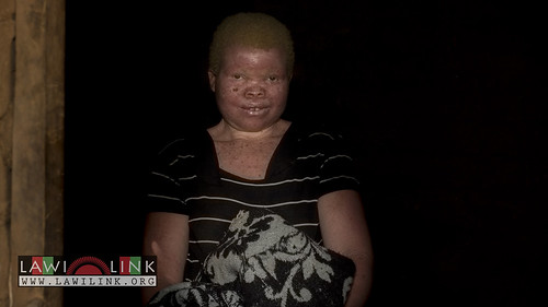 "Persons with Albinism • <a style=""font-size:0.8em;"" href=""http://www.flickr.com/photos/132148455@N06/26967671940/"" target=""_blank"">View on Flickr</a>"