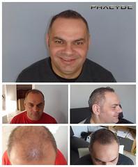 Implantation de cheveux est la solution pour les problèmes de calvitie  http://fr.phaeyde.com/greffe-de-cheveux (phaeydeclinicfrance) Tags: hungary budapest clinic cheveux greffe phaeyde