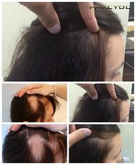 Services de transplantation de cheveux à Budapest, Hongrie  http://fr.phaeyde.com/greffe-de-cheveux (phaeydeclinicfrance) Tags: hungary budapest clinic cheveux greffe phaeyde