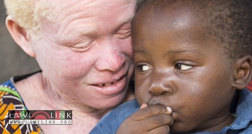 "Persons with Albinism • <a style=""font-size:0.8em;"" href=""http://www.flickr.com/photos/132148455@N06/27174460491/"" target=""_blank"">View on Flickr</a>"