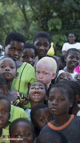 "Persons with Albinism • <a style=""font-size:0.8em;"" href=""http://www.flickr.com/photos/132148455@N06/26638229273/"" target=""_blank"">View on Flickr</a>"