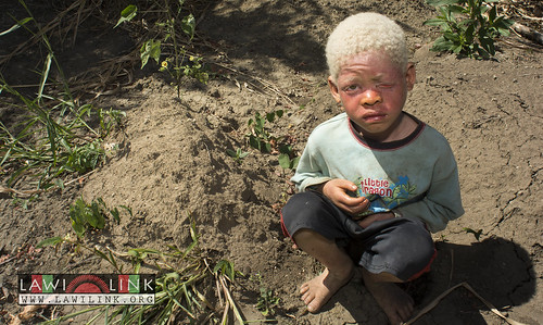 "Persons with Albinism • <a style=""font-size:0.8em;"" href=""http://www.flickr.com/photos/132148455@N06/26967834830/"" target=""_blank"">View on Flickr</a>"