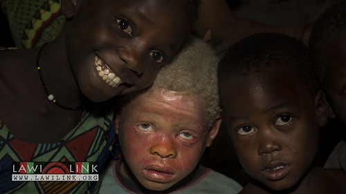 "Persons with Albinism • <a style=""font-size:0.8em;"" href=""http://www.flickr.com/photos/132148455@N06/27174126631/"" target=""_blank"">View on Flickr</a>"