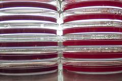 GRN_0212 (David J. Thomas) Tags: media plates dishes gel microbiology agar mannitolsaltagar petriplates macconkeyagar phenylethanolagar eosinemethyleneblueagar phenylethylalcoholagar