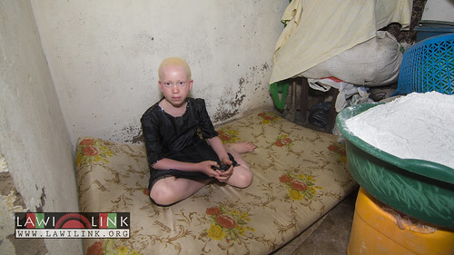 "Persons with Albinism • <a style=""font-size:0.8em;"" href=""http://www.flickr.com/photos/132148455@N06/26968754050/"" target=""_blank"">View on Flickr</a>"