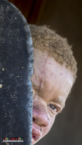 "Persons with Albinism • <a style=""font-size:0.8em;"" href=""http://www.flickr.com/photos/132148455@N06/26637359704/"" target=""_blank"">View on Flickr</a>"