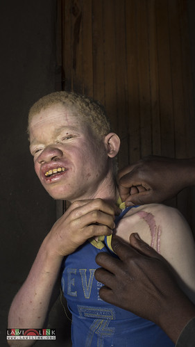 "Persons with Albinism • <a style=""font-size:0.8em;"" href=""http://www.flickr.com/photos/132148455@N06/27174990491/"" target=""_blank"">View on Flickr</a>"