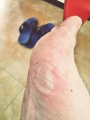 blister. (brendan gibson) Tags: china apple foot asia injury running inner growth mongolia blister prc runner gibson brendan 4s iphone innermongolia hohhot manfoot appleiphone4s