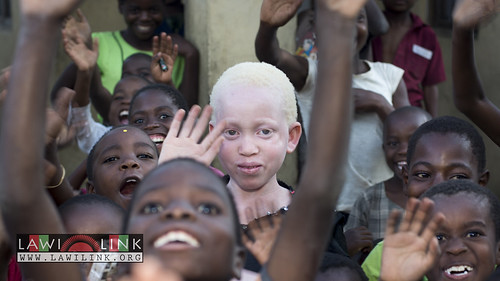 "Persons with Albinism • <a style=""font-size:0.8em;"" href=""http://www.flickr.com/photos/132148455@N06/27243869905/"" target=""_blank"">View on Flickr</a>"