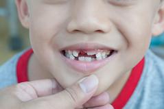 loss tooth (ARZTSAMUI) Tags: boy closeup tooth mouth asian japanese milk kid raw child teeth chinese dental thai preschool kindergarten recent milktooth
