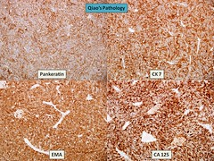 Qiao's Pathology: Serous Carcinoma of the Ovary (乔氏病理学:卵巢浆液性癌) (Qiao's Pathology (Art and Science in Medicine)) Tags: microscopic pathology ovary ihc adenocarcinoma qiaos serous