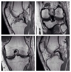 radiopaedia: Q: Acute knee injury. Which of the cruciate and collateral ligaments are torn? VIDEO ANSWER: http://goo.gl/kbfIV via our Facebook page (Radiology Signs) Tags: school student medical xray medicine doctors radiology mri