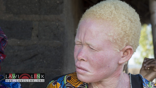 "Persons with Albinism • <a style=""font-size:0.8em;"" href=""http://www.flickr.com/photos/132148455@N06/27209408846/"" target=""_blank"">View on Flickr</a>"