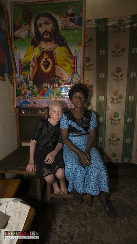 "Persons with Albinism • <a style=""font-size:0.8em;"" href=""http://www.flickr.com/photos/132148455@N06/27209765016/"" target=""_blank"">View on Flickr</a>"