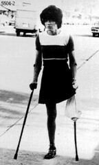 bw_10 - 1960s look one legged girl (jackcast2015) Tags: handicapped disabled disabledwoman cripledwoman onelegwoman oneleggedwoman monopede amputee legamputee crutches