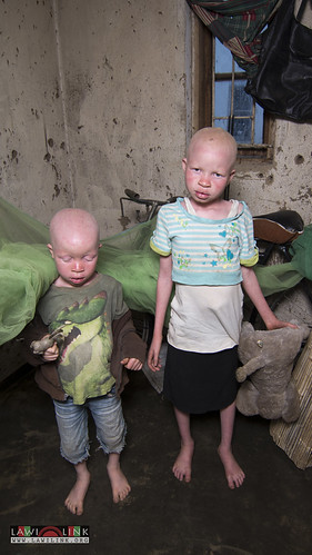 "Persons with Albinism • <a style=""font-size:0.8em;"" href=""http://www.flickr.com/photos/132148455@N06/26635990224/"" target=""_blank"">View on Flickr</a>"
