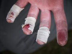 Gritstone fingers (alpeace89) Tags: skin fingers climbing tape bouldering gritstone
