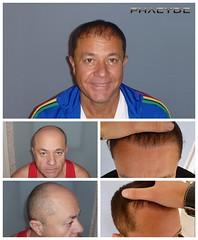 La restauration de cheveux clinique avec d'excellents résultats  http://fr.phaeyde.com/greffe-de-cheveux (phaeydeclinicfrance) Tags: hungary budapest clinic cheveux greffe phaeyde