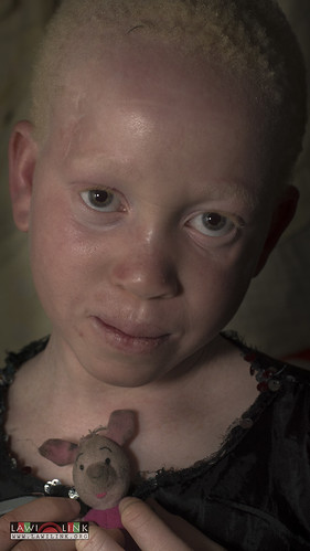 "Persons with Albinism • <a style=""font-size:0.8em;"" href=""http://www.flickr.com/photos/132148455@N06/27146991892/"" target=""_blank"">View on Flickr</a>"