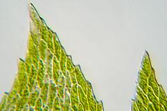 Eurhynchium hians: leaf tips (-- Green Light Images --) Tags: cullaloe edinburgh fife oxyrrhynchiumhians scotland bryophyte bryophyterecordingexcursion moss photomicrography shoottip studio oxyrrhynchiumhiansstack1he areolation eurhynchiumhians