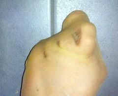 12 (paulkel557) Tags: feet foot toes zehen fus bunions hallux fse