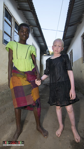 "Persons with Albinism • <a style=""font-size:0.8em;"" href=""http://www.flickr.com/photos/132148455@N06/27174627071/"" target=""_blank"">View on Flickr</a>"