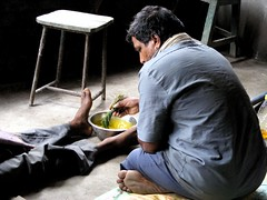 healing jaundice in Madri (Eva Luksaite) Tags: india traditional medicine healing rajasthan treatment jaundice madri jhadol pyliya