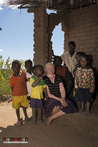 "Persons with Albinism • <a style=""font-size:0.8em;"" href=""http://www.flickr.com/photos/132148455@N06/26636086834/"" target=""_blank"">View on Flickr</a>"