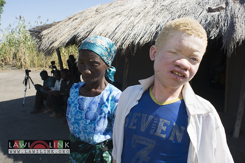 "Persons with Albinism • <a style=""font-size:0.8em;"" href=""http://www.flickr.com/photos/132148455@N06/26968848040/"" target=""_blank"">View on Flickr</a>"