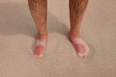 Don't forget the sun cream! (**Anik Messier**) Tags: man feet beach nationalpark spain legs fuerteventura sunburned sunburn suntan canaryislands parquenaturaldelasdunasdecorralejo playasgrandes corralejodunebeach