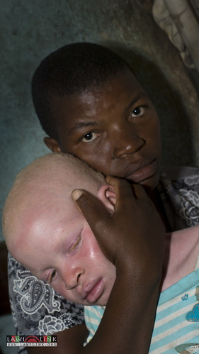 "Persons with Albinism • <a style=""font-size:0.8em;"" href=""http://www.flickr.com/photos/132148455@N06/26635955434/"" target=""_blank"">View on Flickr</a>"