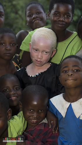 "Persons with Albinism • <a style=""font-size:0.8em;"" href=""http://www.flickr.com/photos/132148455@N06/26638225113/"" target=""_blank"">View on Flickr</a>"