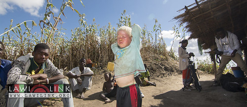"Persons with Albinism • <a style=""font-size:0.8em;"" href=""http://www.flickr.com/photos/132148455@N06/26637802213/"" target=""_blank"">View on Flickr</a>"