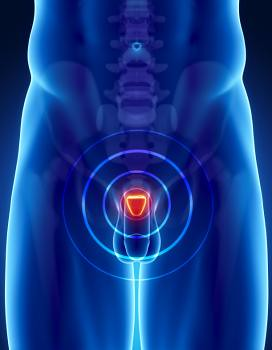 Medical News Today: Targeted biopsy better at detecting high-risk PROSTATE CANCERs than standard biopsy