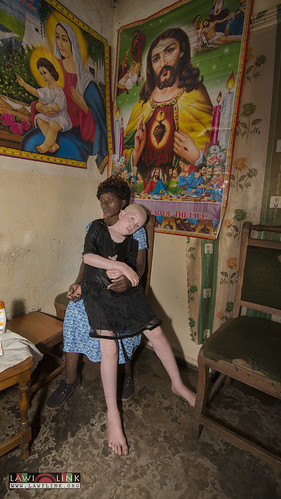 "Persons with Albinism • <a style=""font-size:0.8em;"" href=""http://www.flickr.com/photos/132148455@N06/26638307673/"" target=""_blank"">View on Flickr</a>"