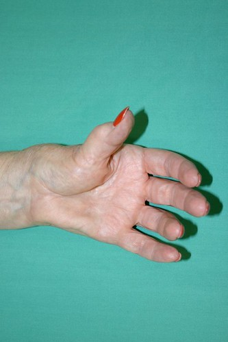 thumb arthritis - resting posture by handarmdoc, on Flickr