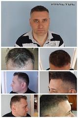 Après avoir essayé toutes les schampoos, la greffe de cheveux résout vraiment le problème de la calvitie.  http://fr.phaeyde.com/greffe-de-cheveux (phaeydeclinicfrance) Tags: hungary budapest clinic cheveux greffe phaeyde